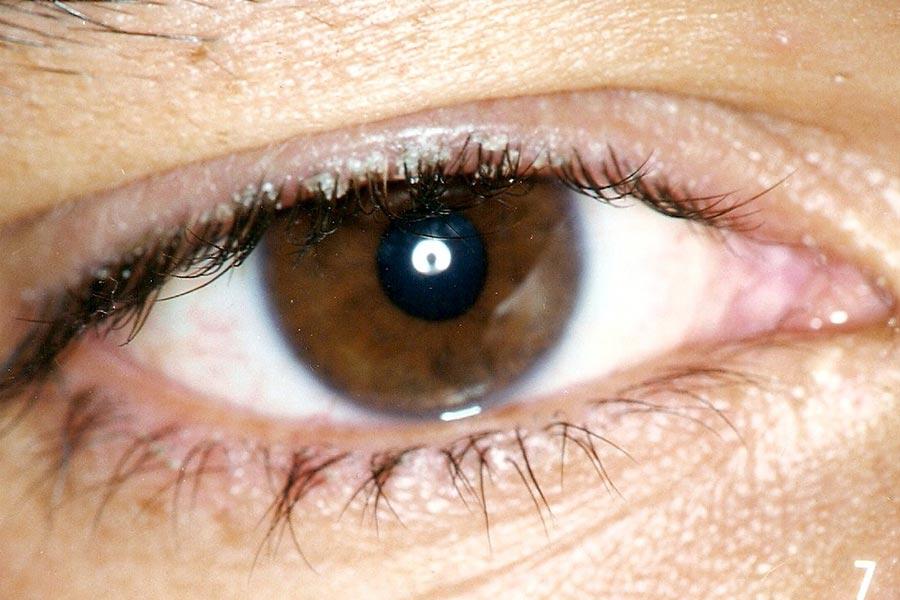Close de olho com blefarite seborreica