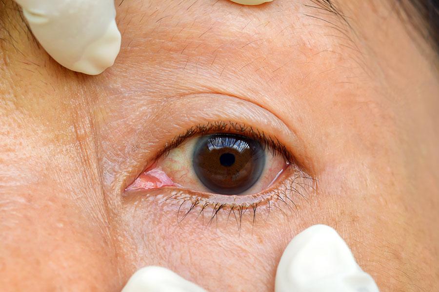 Close de um olho com conjuntivite sendo puxado embaixo e em cima por mãos de médico vestindo luvas