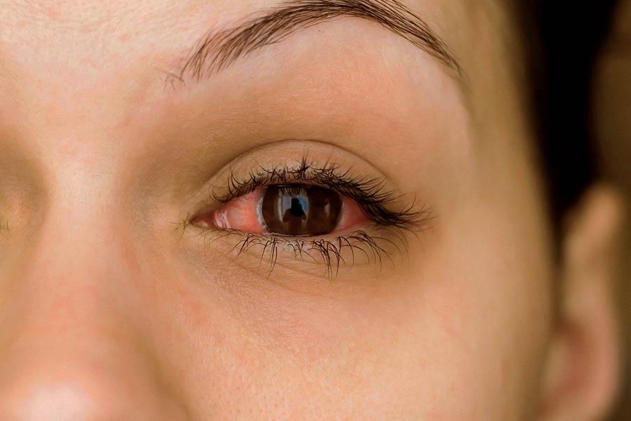 close de olho vermelho por causa de conjuntivite