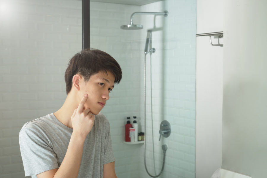 Problemas de pele na adolescência. Jovem se olha no espelho do banheiro enquanto segura seu rosto com as mão