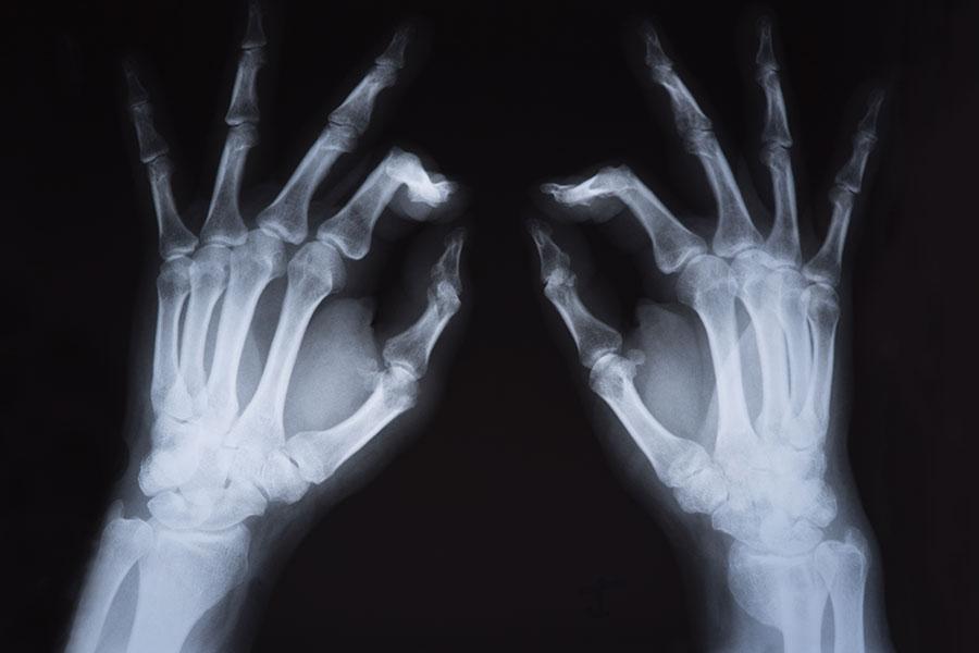 Raios X de mãos com os dedos indicadores flexionados com dor por causa do dedo em gatilho