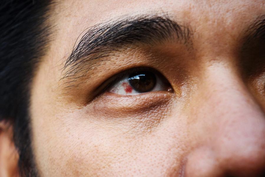 Close de olho com derrame ocular