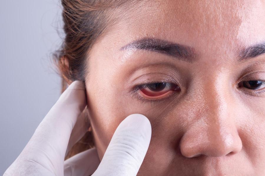 Mão de oftalmologista examinando o olho de uma mulher asiática com entrópio e ectrópio