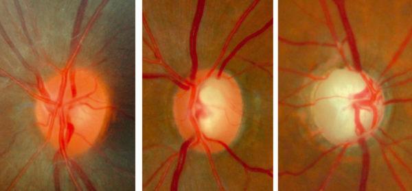 Imagem microscópica de um olho com glaucoma