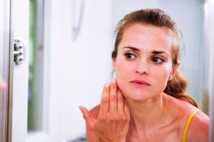 Rosácea: causas, sintomas e como lidar com ela
