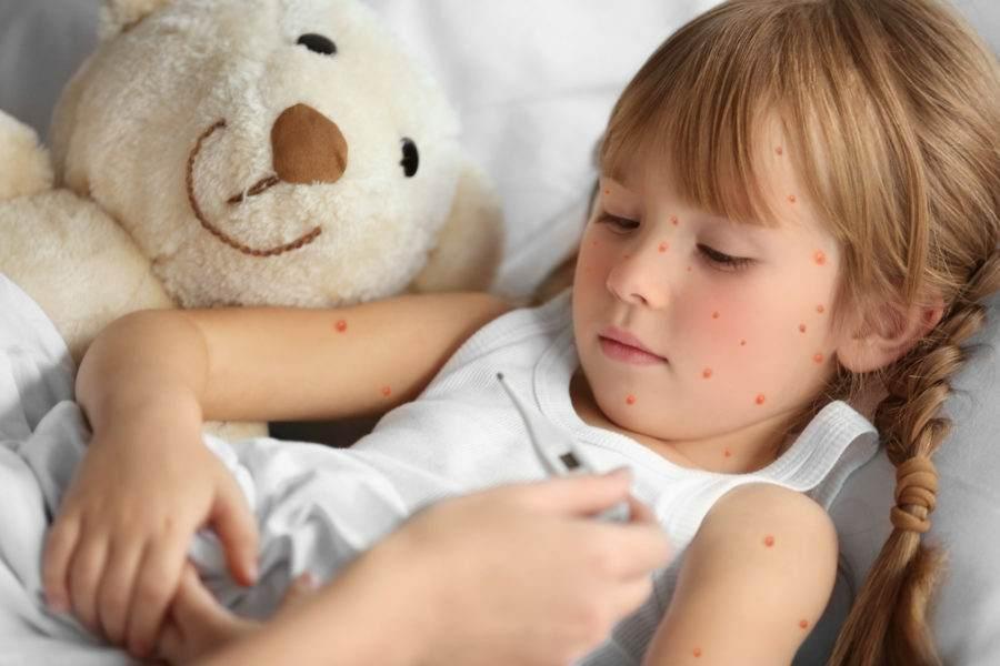 Criança com catapora tendo a temperatura medida por sua mãe.