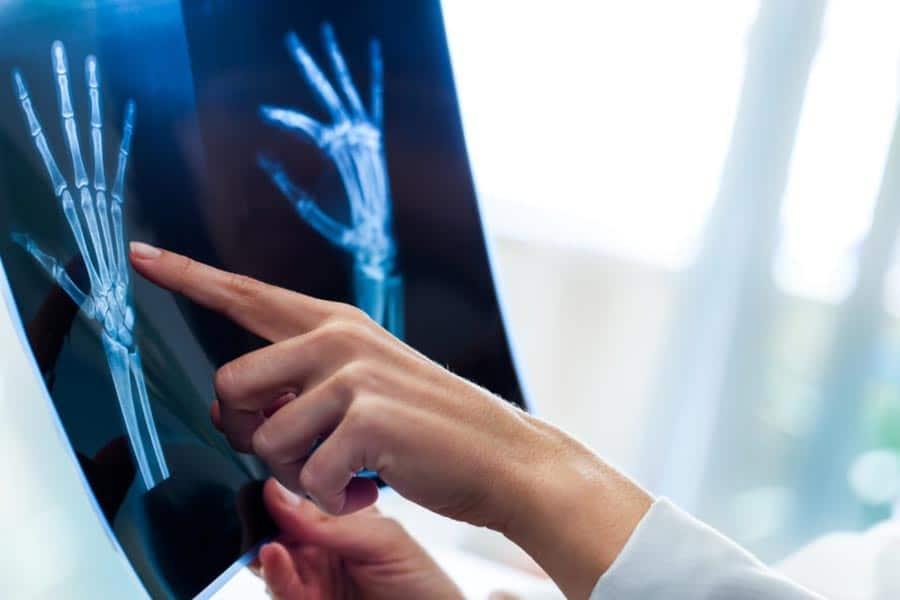 Idade óssea: tudo o que você precisa saber