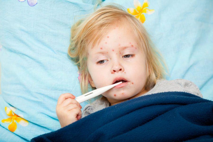 Sarampo: o que é, sintomas e tratamento