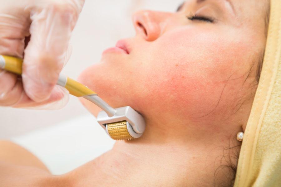Close de rosto de uma mulher em uma sessão de microagulhamento