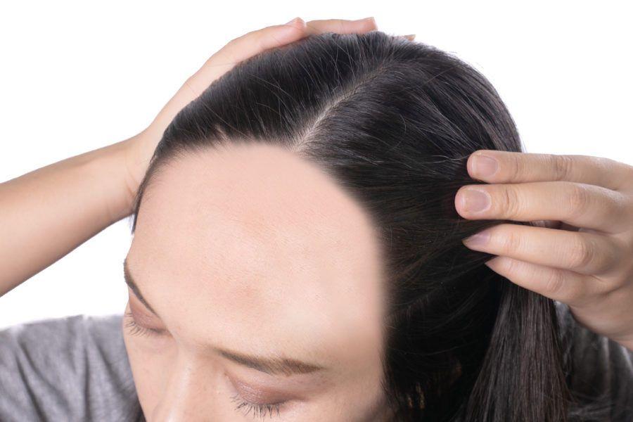 E quando você nota que seus cabelos estão caindo e, ao mesmo tempo, sua testa está ficando grande?
