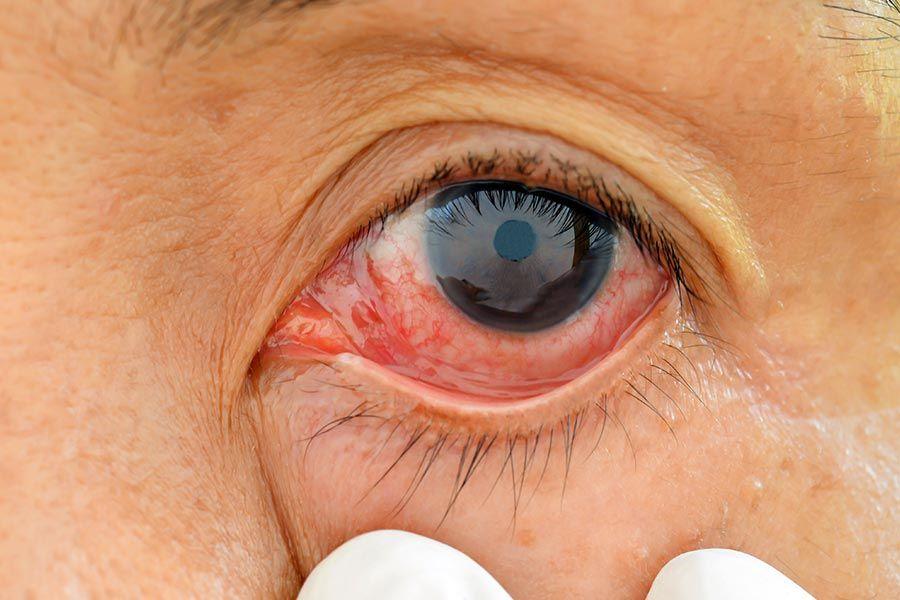 Descolamento de retina: causas, sintomas e tratamentos