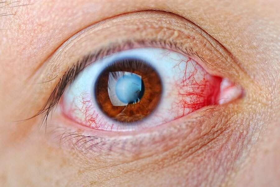 Retinopatia hipertensiva: causas, sintomas e tratamentos