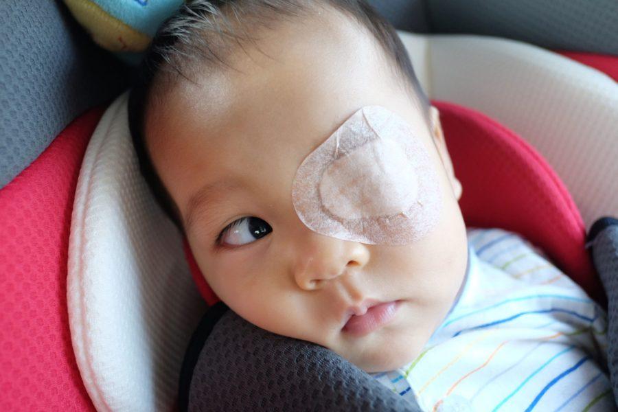 Bebê asiático com tampão ocular para tratar ambliopia
