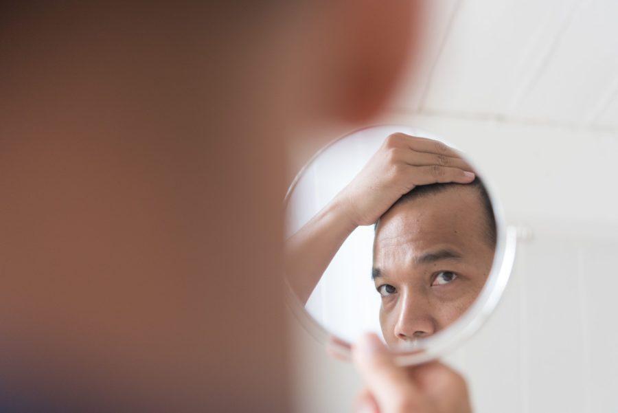 Homem se olhando no espelho e puxando o cabelo da testa para trás com sinal de preocupação por estar perdendo cabelo
