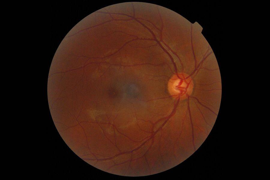 Antiangiogênicos na degeneração macular, diabetes e outras doenças da retina