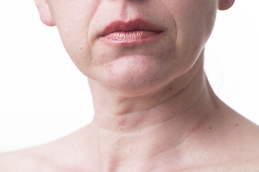 Linhas no pescoço: por que elas aparecem e como lidar com elas?