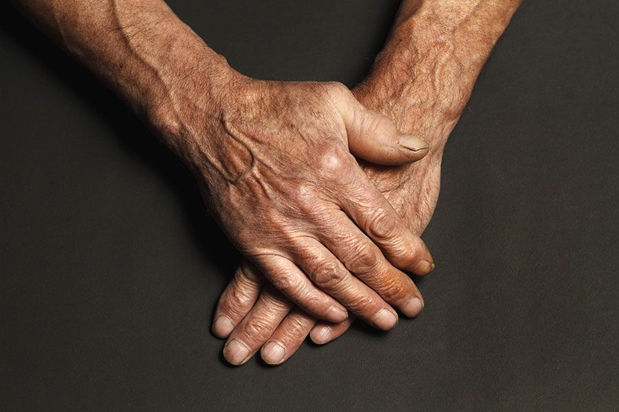 Rejuvenescimento das mãos: como deixá-las ainda mais bonitas?