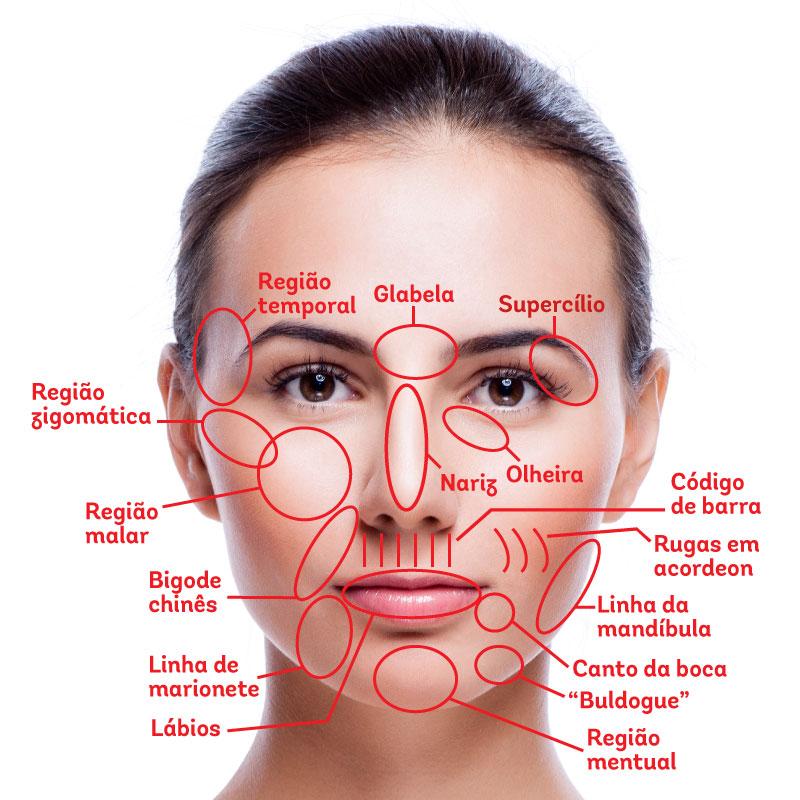 Rosto de uma mulher com regiões que podem ser tratadas com preenchimento marcadas de vermelho