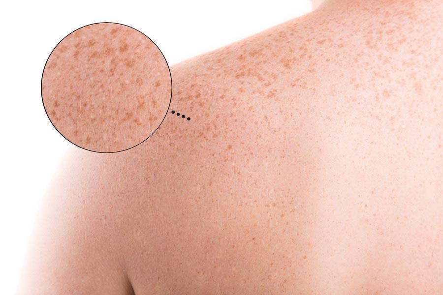 Manchas brancas na pele: o que elas podem ser?