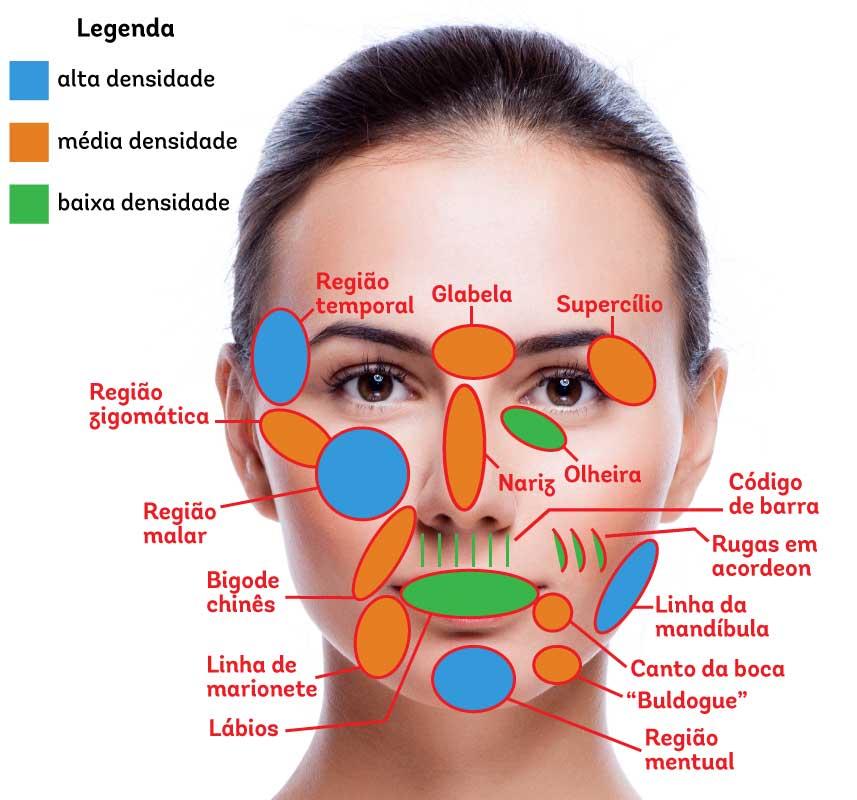 Figura com os locais de aplicação do ácido hialurônico na face e indicado os tipos do produto em cada local.