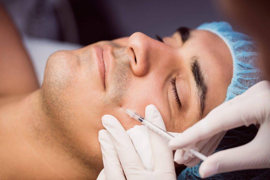 Homem recebendo uma injeção de hialuronidase de um dermatologista na região do bigode chinês com o intuito de reverter as alterações feitas pelo preenchimento dérmico com ácido hialurônico.