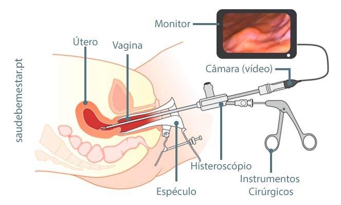 Figura representando a histeroscopia para remoção de miomas submucosos