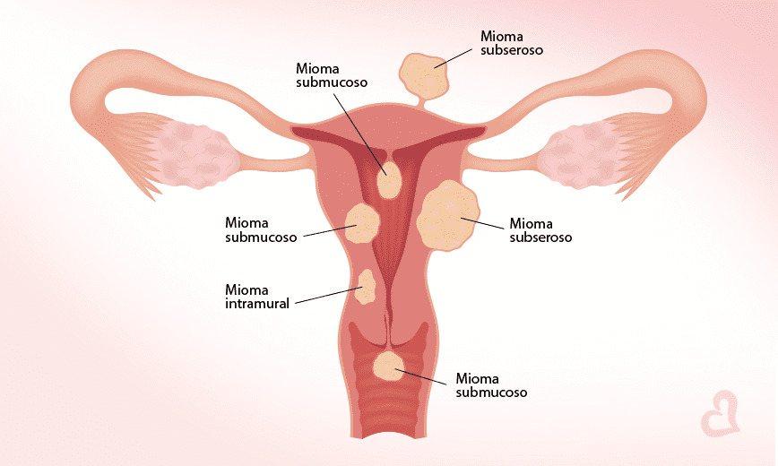 Figura representando os tipos de miomas existentes