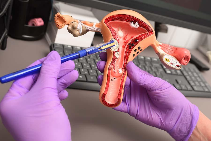 Modelo de um útero com miomas nas mãos de um ginecologista