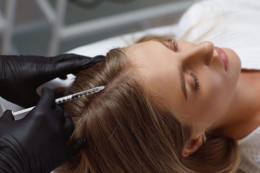 MMP e intradermoterapia: duas fortes alternativas para a queda de cabelos!