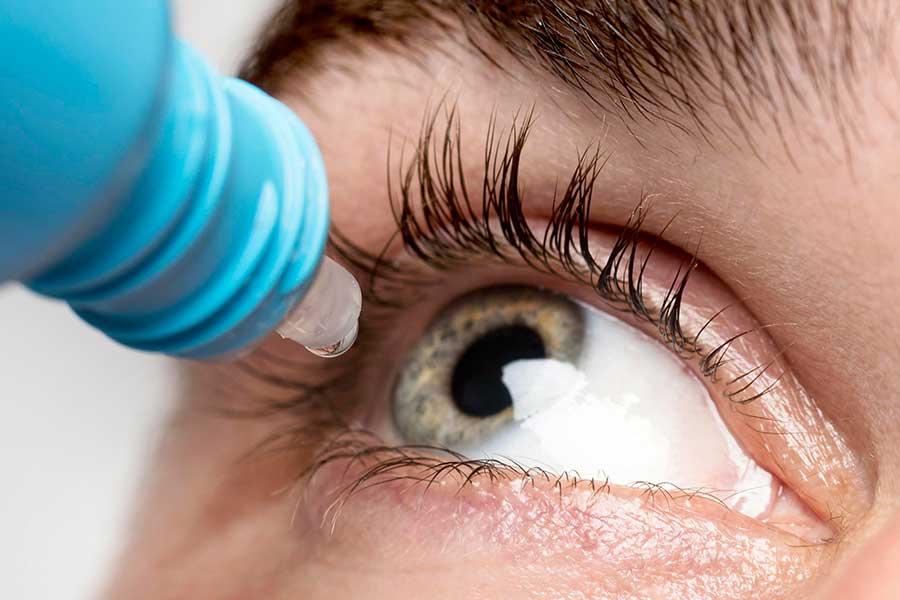 Close de homem aplicando colírio lubrificando em um de seus olhos por estar sofrendo de olho seco