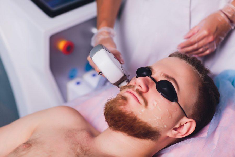 Homem passando por um procedimento de depilação a laser na barba