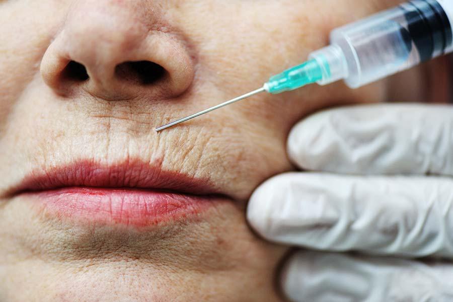 Close de uma mulher mais velha com rugas na boca recebendo um injeção nessa região.