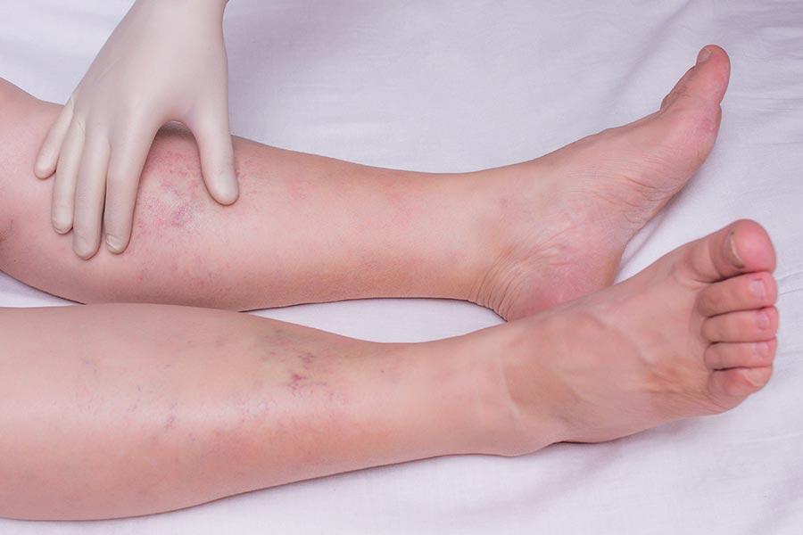 Inchaço nas pernas: o que pode ser, e como lidar?